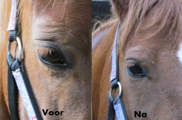 Voor_Na_Oog